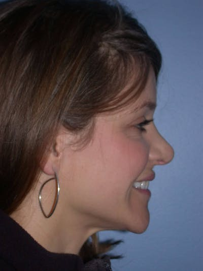 Rhinoplasty Gallery - Patient 4757184 - Image 1