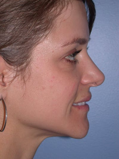 Rhinoplasty Gallery - Patient 4757184 - Image 2