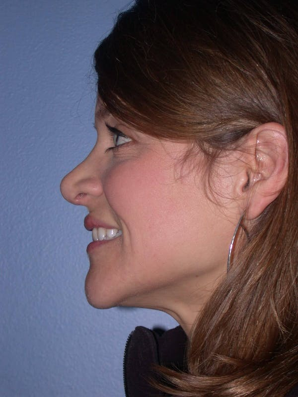 Rhinoplasty Gallery - Patient 4757184 - Image 3
