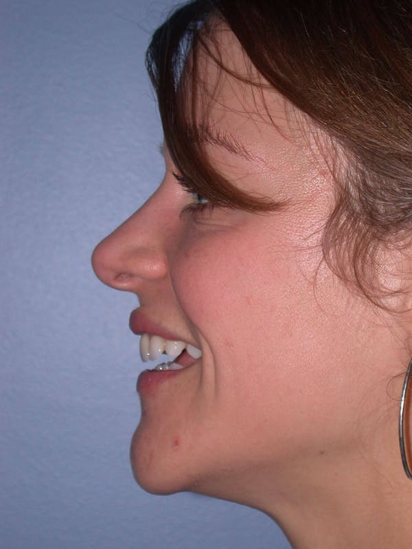 Rhinoplasty Gallery - Patient 4757184 - Image 4