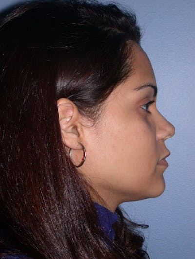 Revision Rhinoplasty Gallery - Patient 4757186 - Image 1