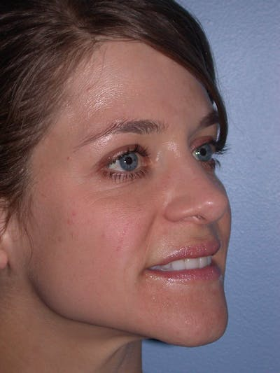 Rhinoplasty Gallery - Patient 4757184 - Image 6