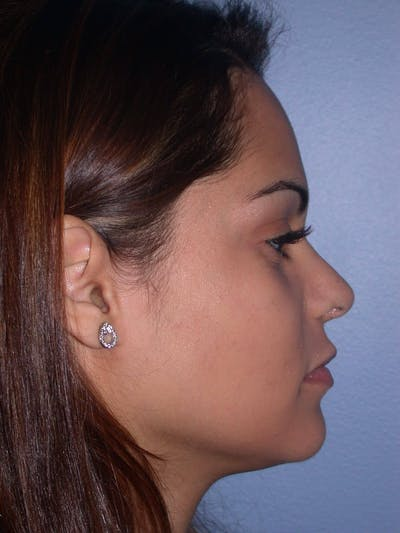Revision Rhinoplasty Gallery - Patient 4757186 - Image 2