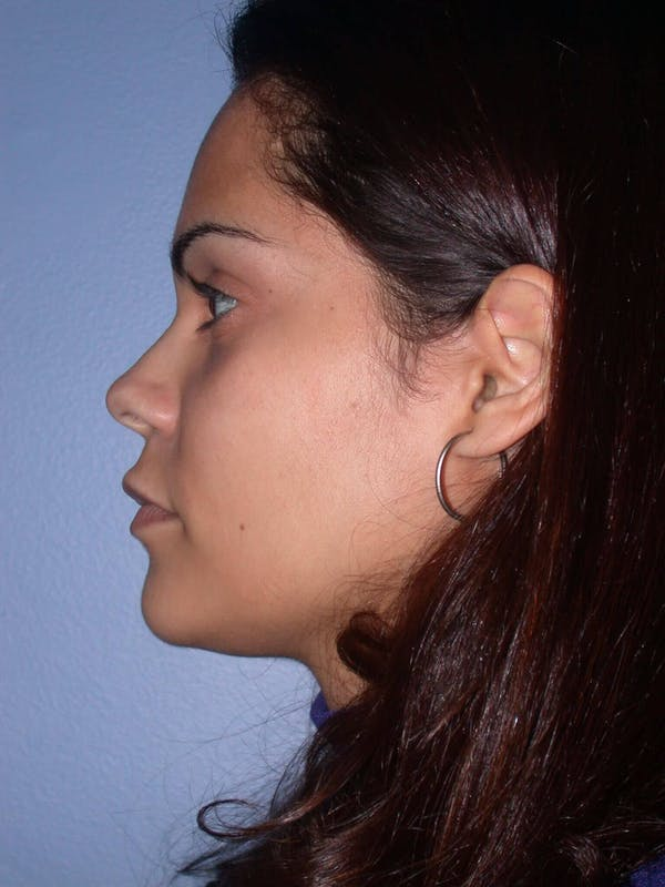 Revision Rhinoplasty Gallery - Patient 4757186 - Image 7