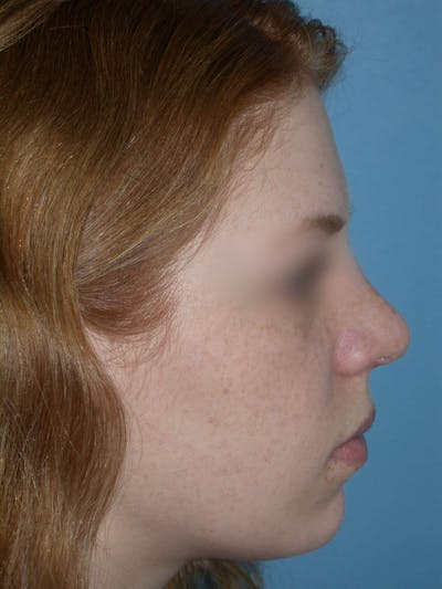 Rhinoplasty Gallery - Patient 4757187 - Image 1