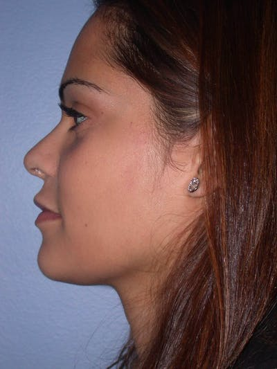 Revision Rhinoplasty Gallery - Patient 4757186 - Image 8