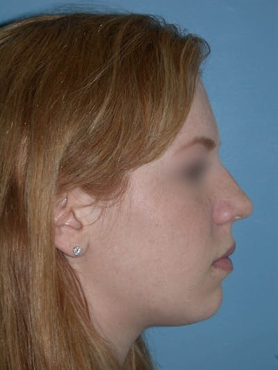 Rhinoplasty Gallery - Patient 4757187 - Image 2