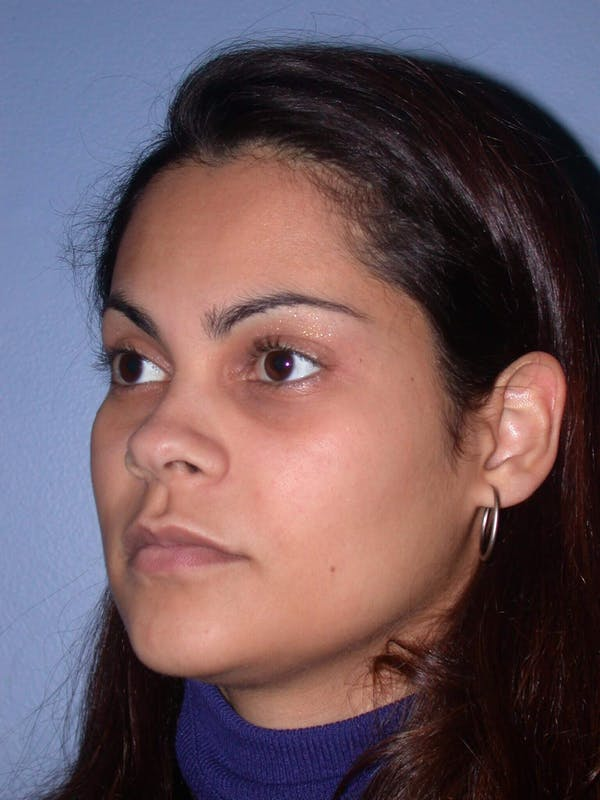 Revision Rhinoplasty Gallery - Patient 4757186 - Image 3