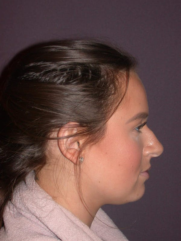 Revision Rhinoplasty Gallery - Patient 4757198 - Image 1