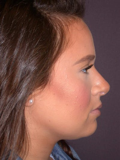 Revision Rhinoplasty Gallery - Patient 4757198 - Image 2
