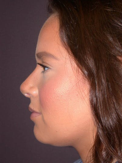 Revision Rhinoplasty Gallery - Patient 4757198 - Image 4