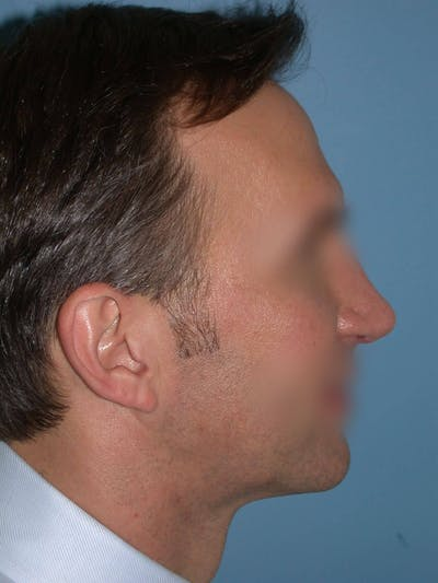 Rhinoplasty Gallery - Patient 4757199 - Image 2
