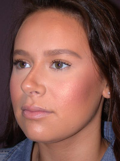 Revision Rhinoplasty Gallery - Patient 4757198 - Image 6