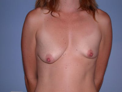 Tubular Breasts Gallery - Patient 4757200 - Image 1