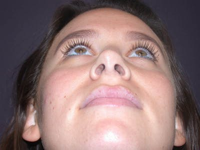 Revision Rhinoplasty Gallery - Patient 4757198 - Image 8