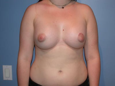 Tubular Breasts Gallery - Patient 4757204 - Image 2