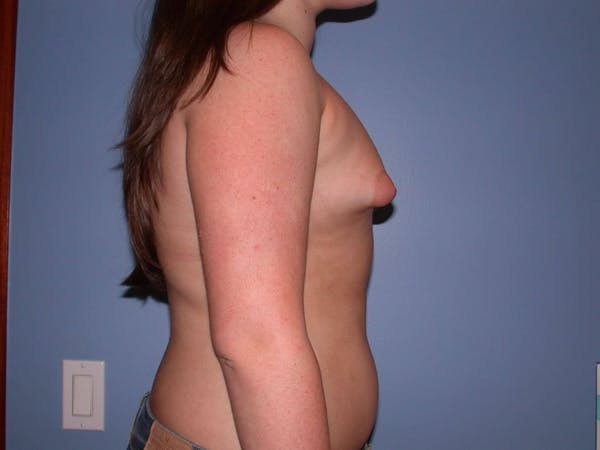 Tubular Breasts Gallery - Patient 4757204 - Image 3