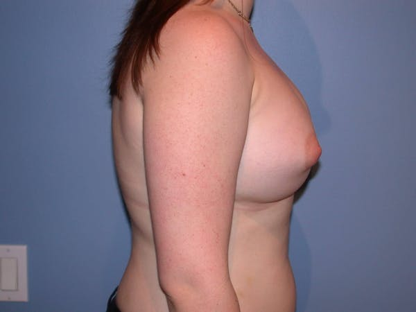 Tubular Breasts Gallery - Patient 4757204 - Image 4