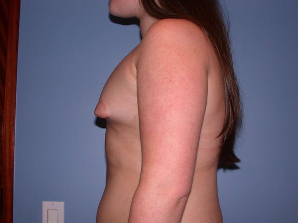 Tubular Breasts Gallery - Patient 4757204 - Image 5