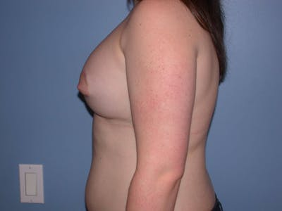 Tubular Breasts Gallery - Patient 4757204 - Image 6