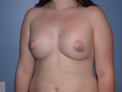 Tubular Breasts Gallery - Patient 4757204 - Image 8
