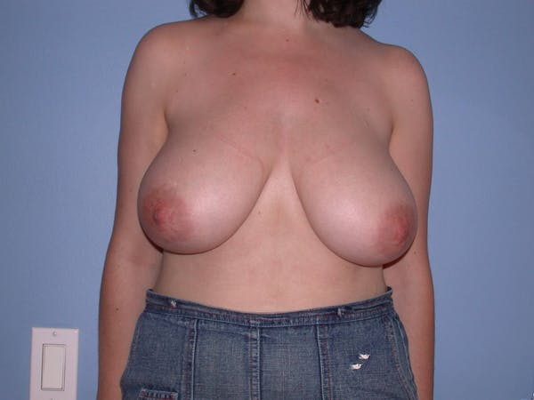 Breast Reduction Gallery - Patient 4757219 - Image 1