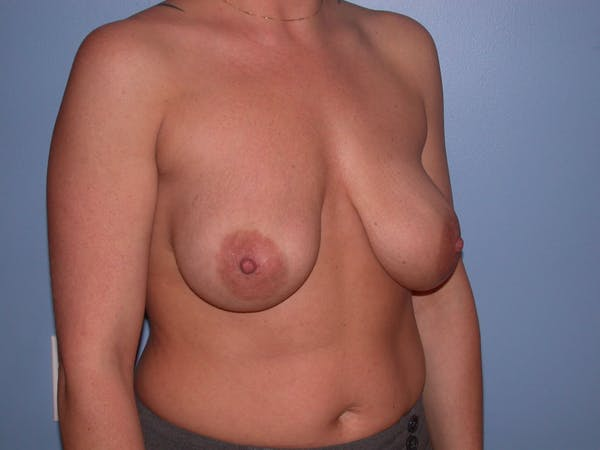 Breast Lift Gallery - Patient 4757216 - Image 3