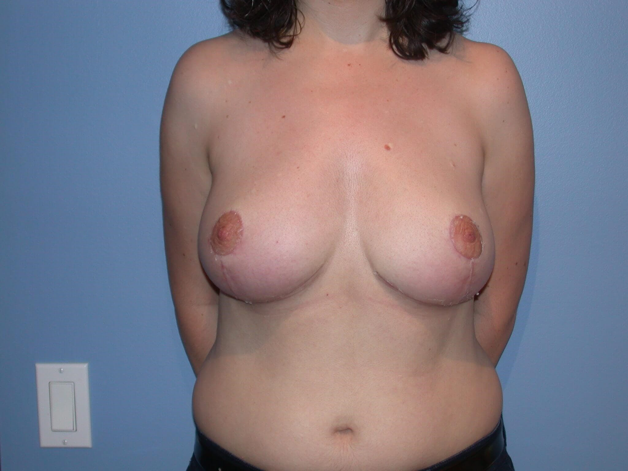 Breast Reduction San Francisco Before and After
