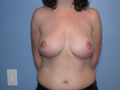 Breast Reduction Gallery - Patient 4757219 - Image 2