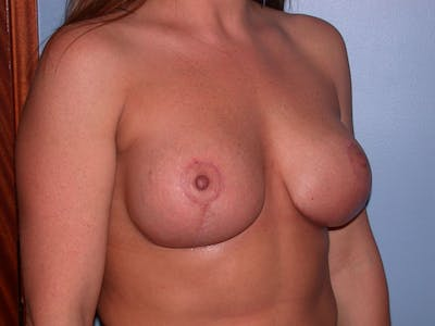 Breast Lift Gallery - Patient 4757216 - Image 4