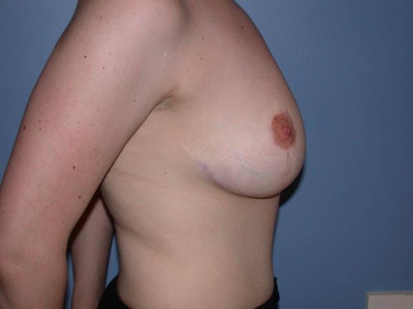 Breast Reduction Gallery - Patient 4757219 - Image 4