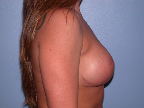 Breast Lift Gallery - Patient 4757216 - Image 6