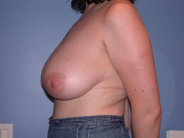 Breast Reduction Gallery - Patient 4757219 - Image 5