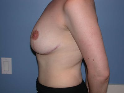 Breast Reduction Gallery - Patient 4757219 - Image 6