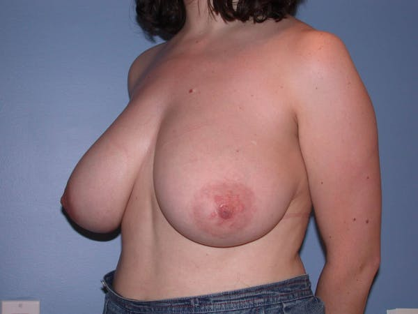 Breast Reduction Gallery - Patient 4757219 - Image 7
