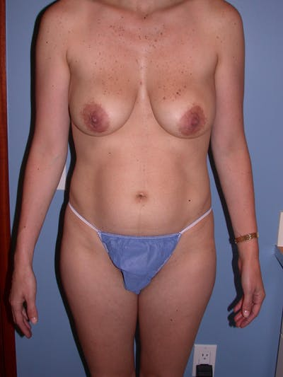 Breast Lift Gallery - Patient 4757221 - Image 1