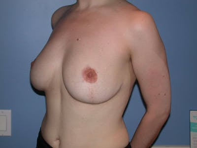 Breast Reduction Gallery - Patient 4757219 - Image 8