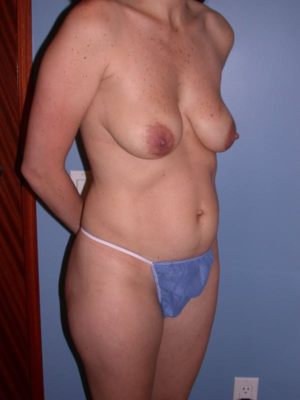 Breast Lift Gallery - Patient 4757221 - Image 3
