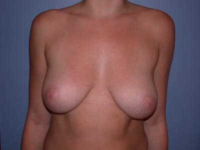 Inverted Nipple Repair Gallery - Patient 4757220 - Image 1