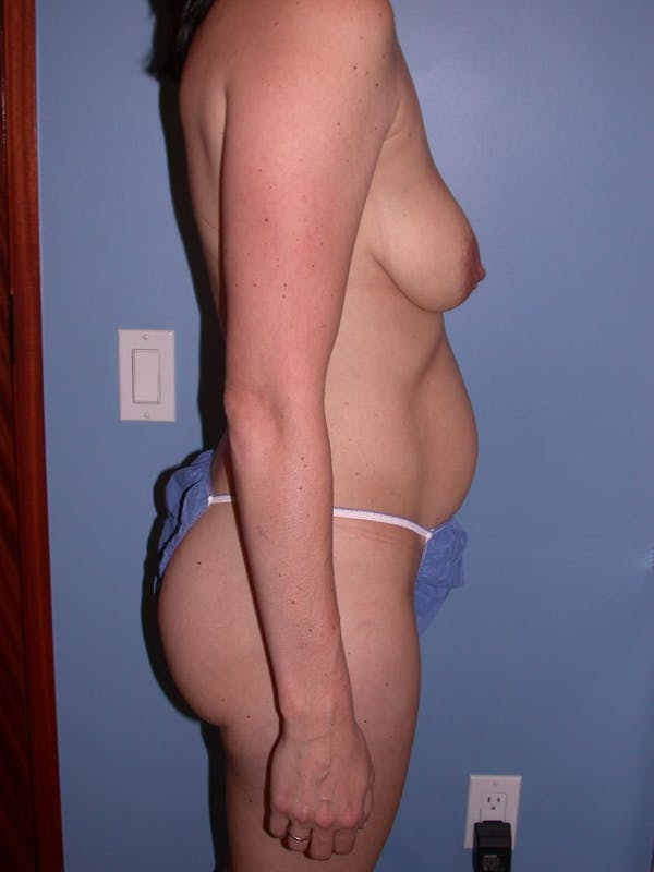 Breast Lift Gallery - Patient 4757221 - Image 5