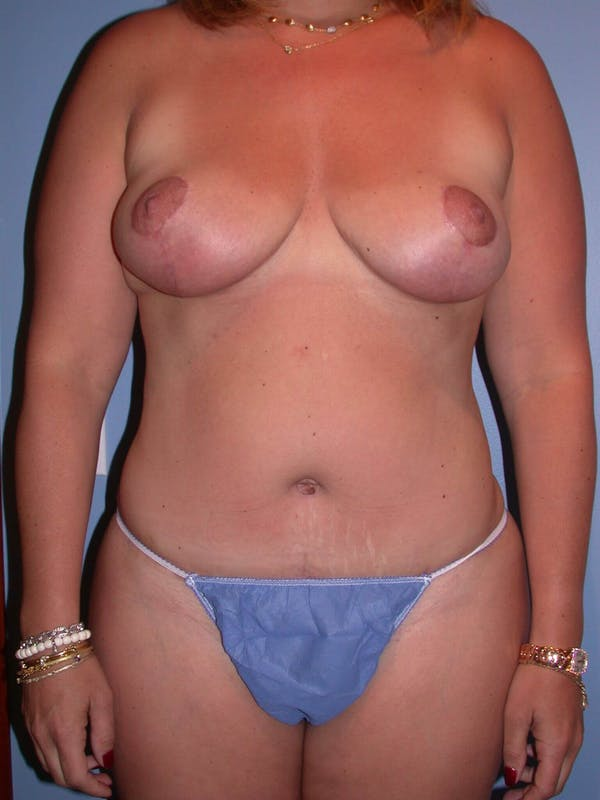 Breast Reduction Gallery - Patient 4757222 - Image 2
