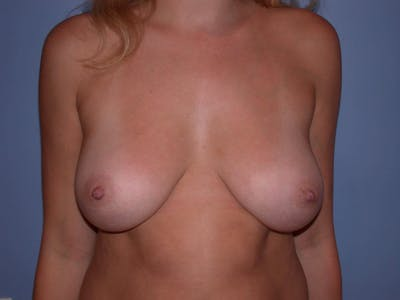 Inverted Nipple Repair Gallery - Patient 4757220 - Image 2