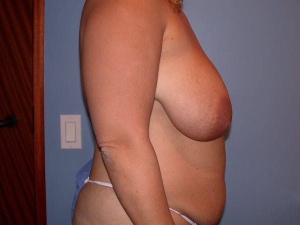 Breast Reduction Gallery - Patient 4757222 - Image 3