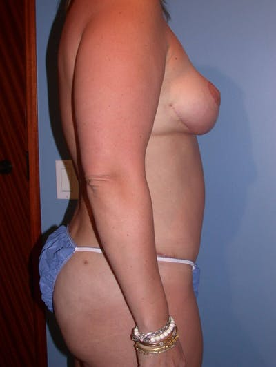 Breast Reduction Gallery - Patient 4757222 - Image 4