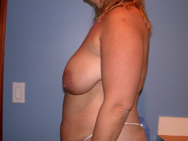 Breast Reduction Gallery - Patient 4757222 - Image 5