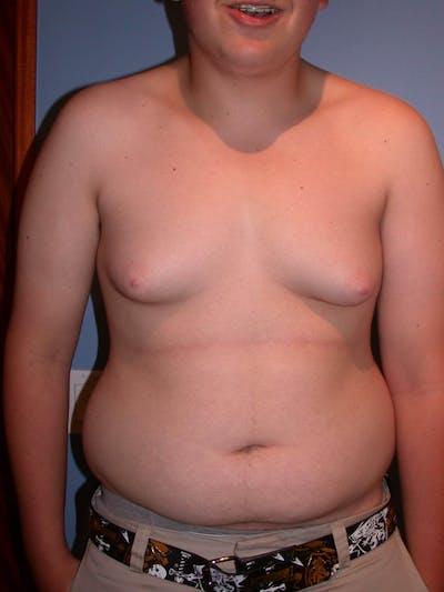 Gynecomastia Gallery - Patient 4757227 - Image 1