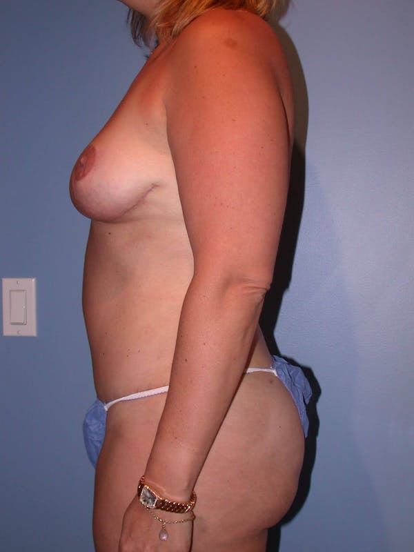 Breast Reduction Gallery - Patient 4757222 - Image 6