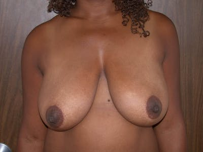 Breast Lift Gallery - Patient 4757226 - Image 1