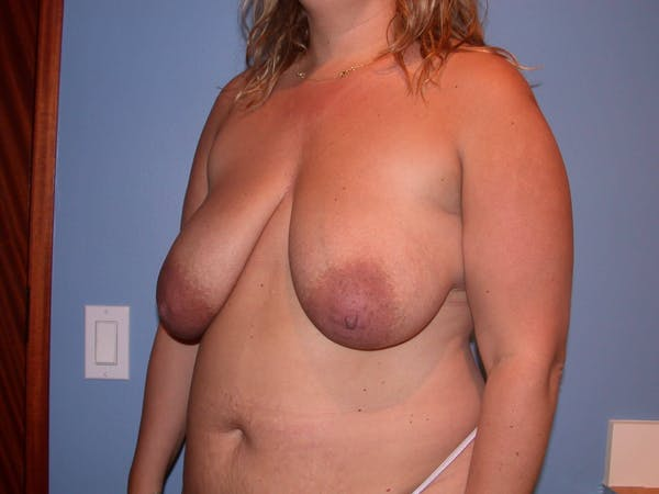 Breast Reduction Gallery - Patient 4757222 - Image 7