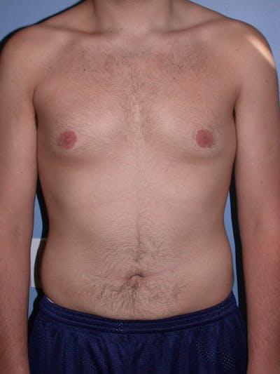 Gynecomastia Gallery - Patient 4757227 - Image 2